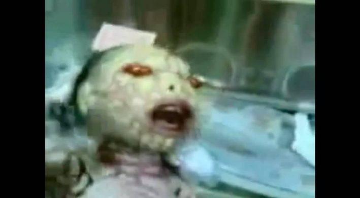 【qアノン】奇型ではありません、 これはレプの新生児(衝撃的・・)